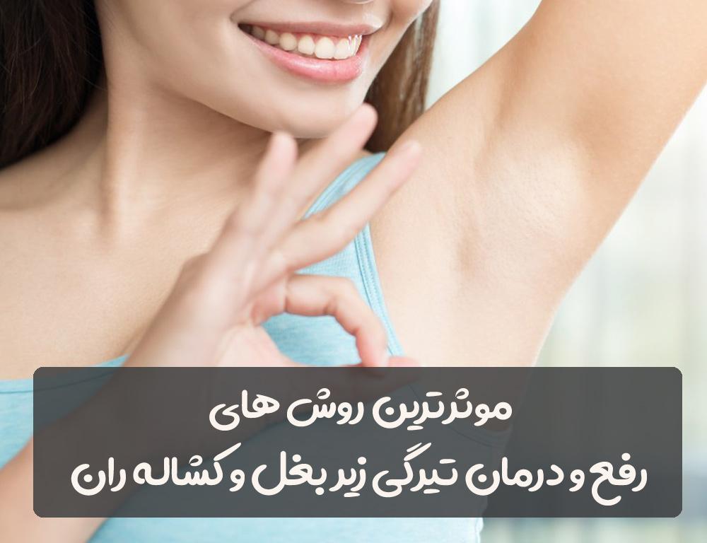 رفع و درمان تیرگی و سیاهی زیر بغل و کشاله ران