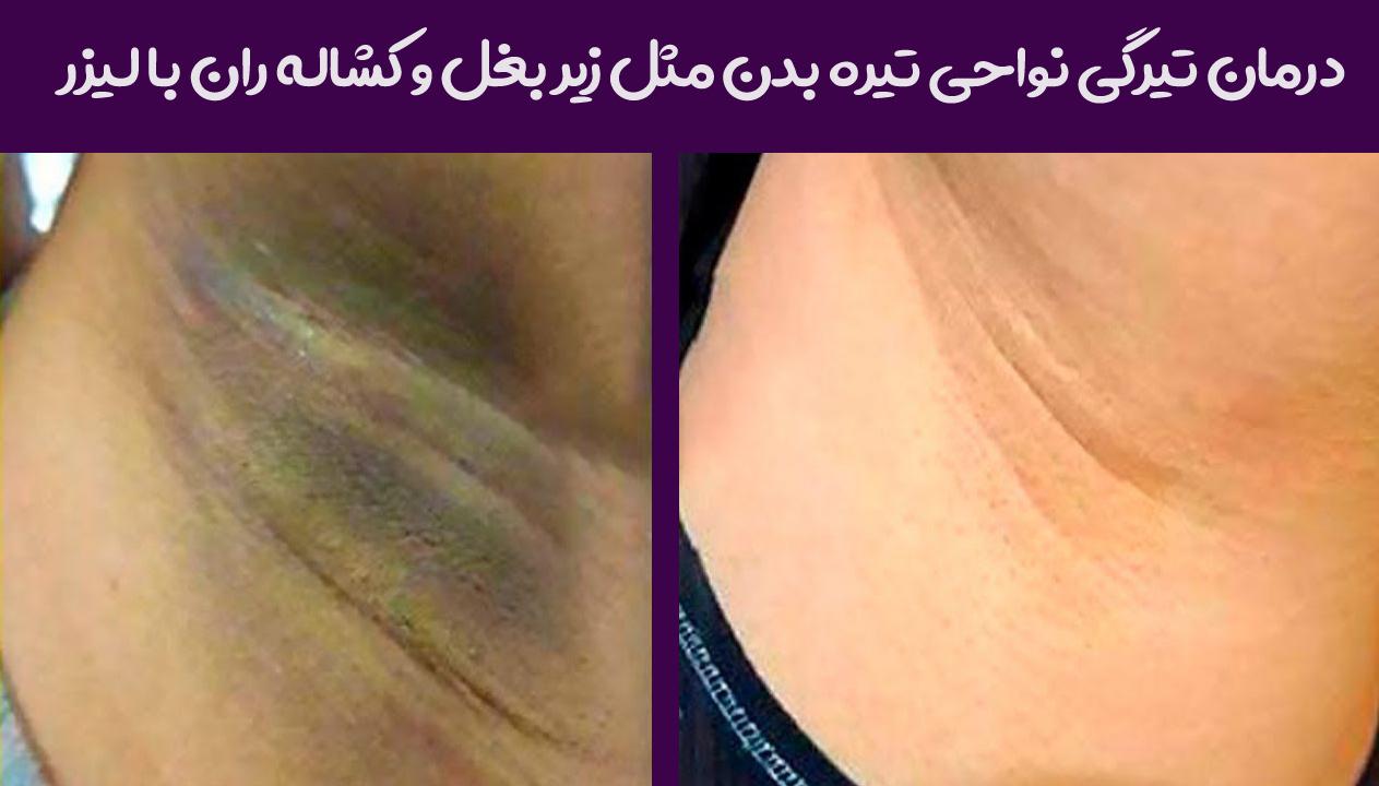 عکس قبل و بعد روشن کردن زیربغل با لیزر