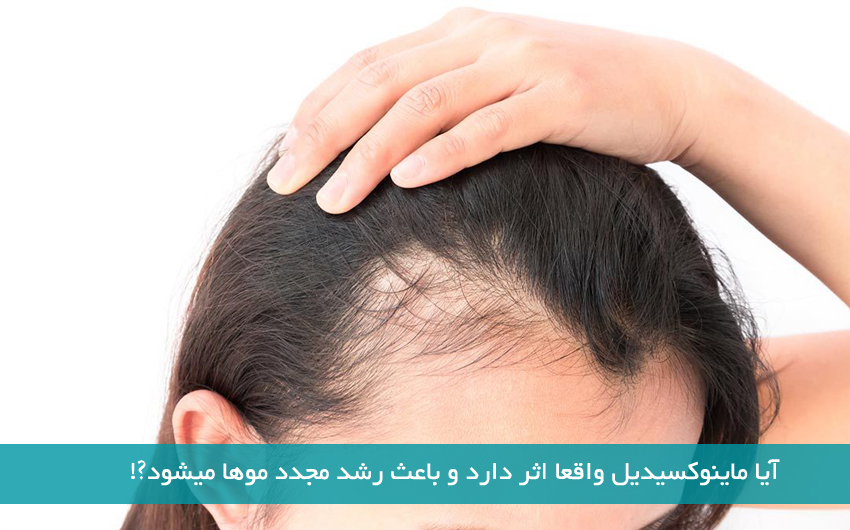 آیا ماینوکسیدیل واقعا باعث رشد مجدد موها میشود ?