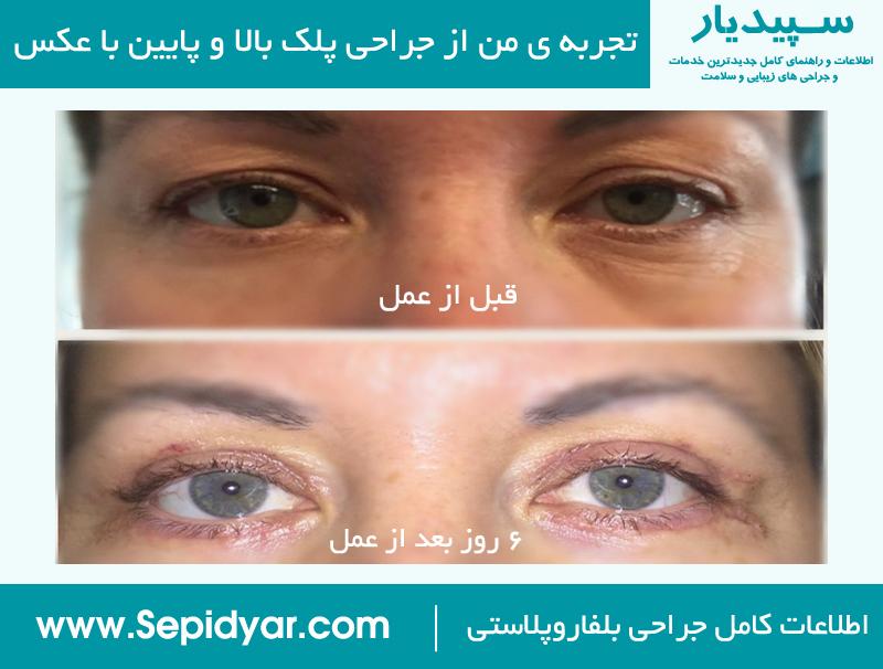 مقایسه عکس قبل و بعد از بلفاروپلاستی - جراحی پلک بالا و پایین