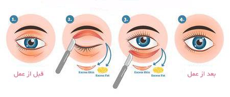 مراحل جراحی پلک بصورت تصویری