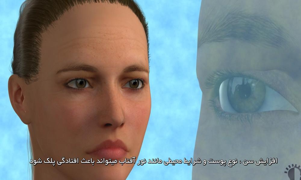 فیلم جراحی پلک بالا برای رفع پف و افتادگی پلک