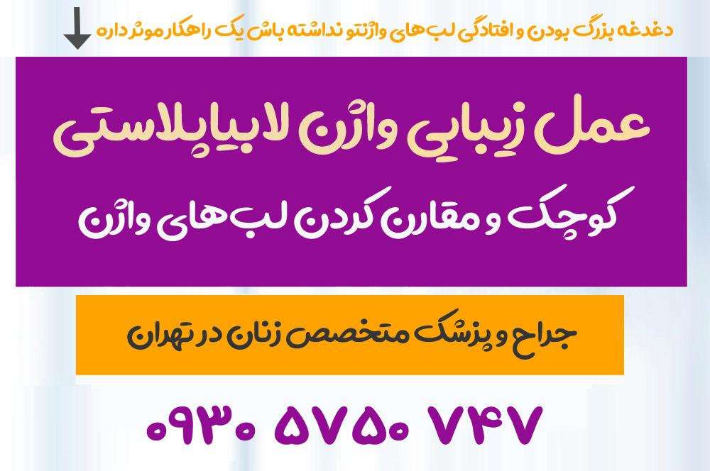 متخصص عمل زیبایی واژن لابیاپلاستی در تهران