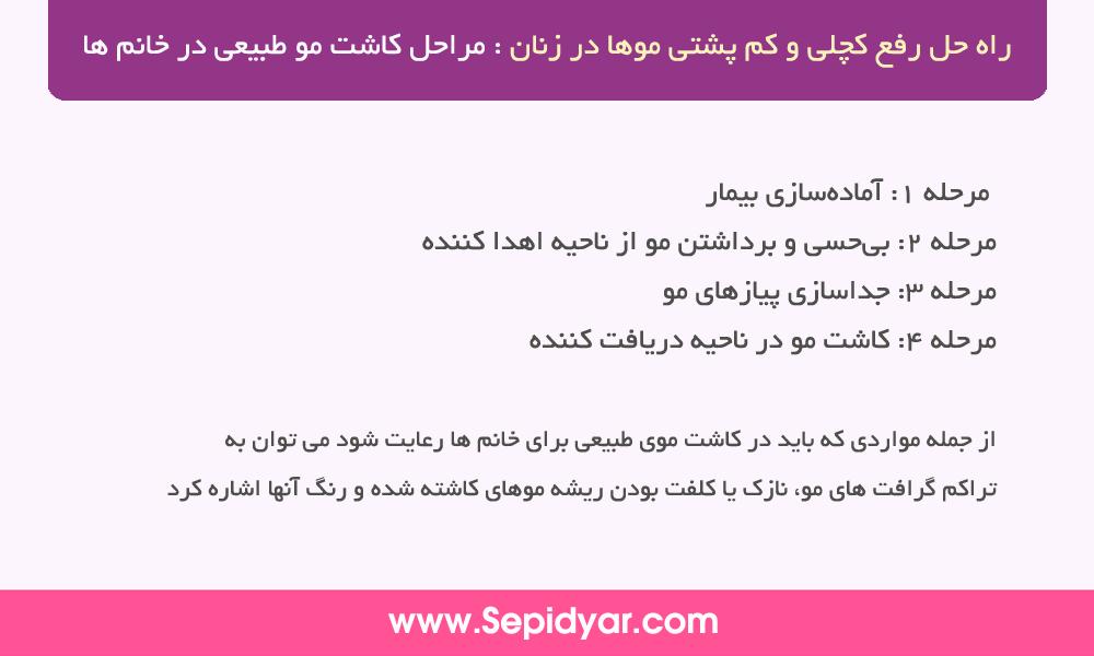 مراحل کاشت مو طبیعی در خانم ها