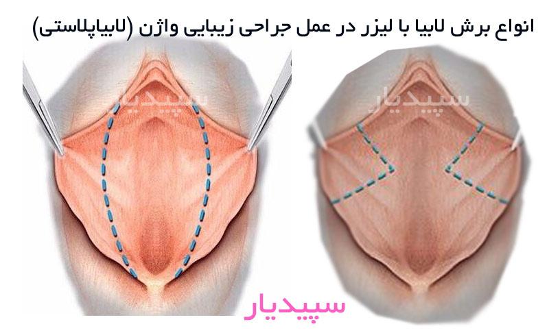 انواع برش لابیا با لیزر در عمل جراحی زیبایی واژن (لابیاپلاستی