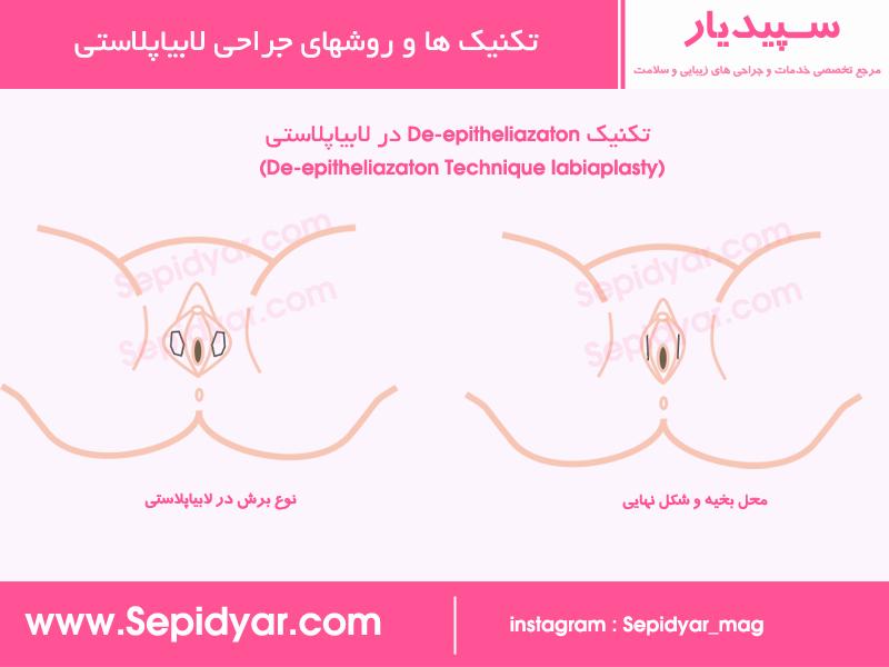 De- epitheliazaton Technique labiaplasty