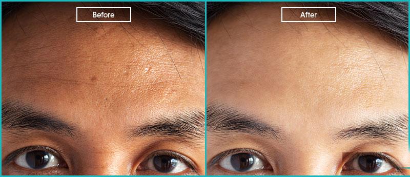 عکس قبل و بعد از روشن کردن پوست با لیزر