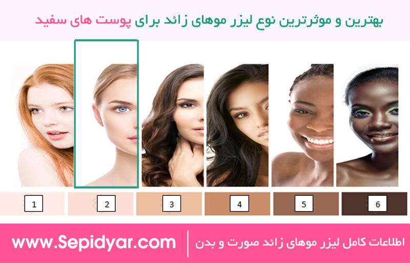 بهترین و موثرترین لیزر موهای زائد برای پوست های سفید