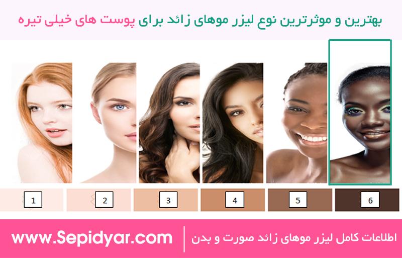 بهترین و موثرترین لیزر موهای زائد برای پوست های تیره
