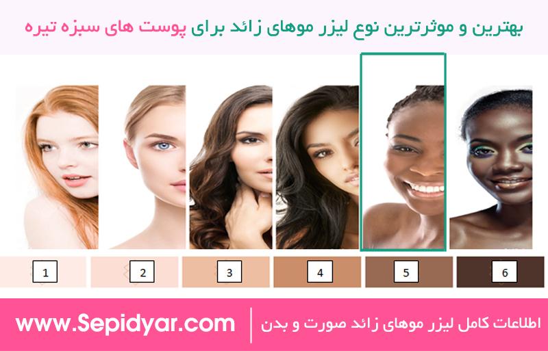 بهترین و موثرترین لیزر موهای زائد برای پوست های سبزه تیره