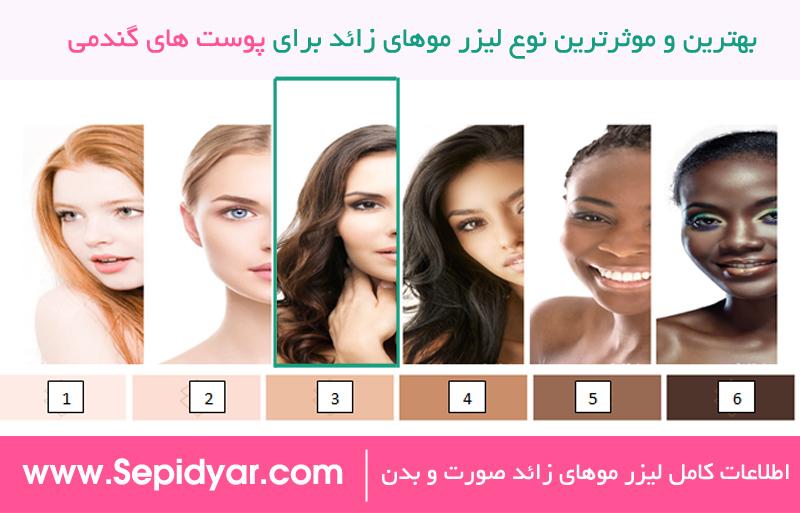 بهترین و موثرترین لیزر موهای زائد برای پوست های گندمی