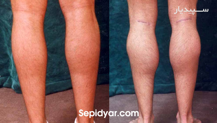 عکس قبل و بعد از لیپوماتیک ساق پا